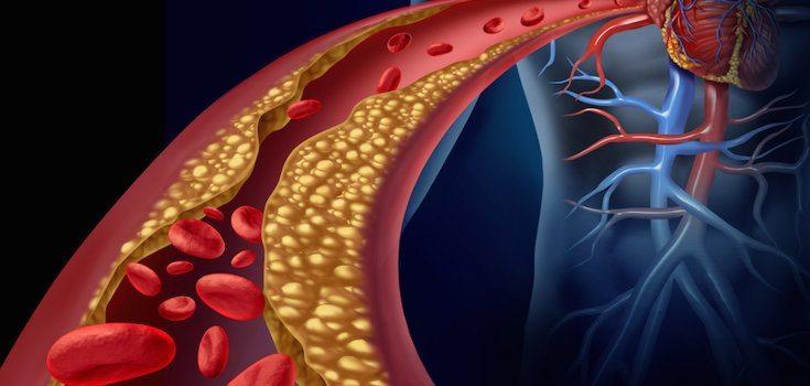 dieta para diminuir colesterol e glicose