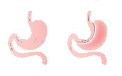 cirurgia-bariatrica2