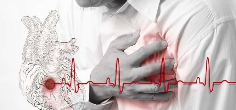 Doenças cardiovasculares e o benefício da atividade física